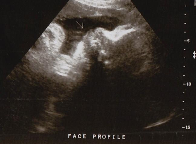 Teddy's ultrasound